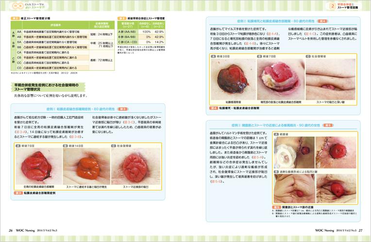 印刷 html pdf 印刷 : 医学出版_WOC Nursing 14年3月号